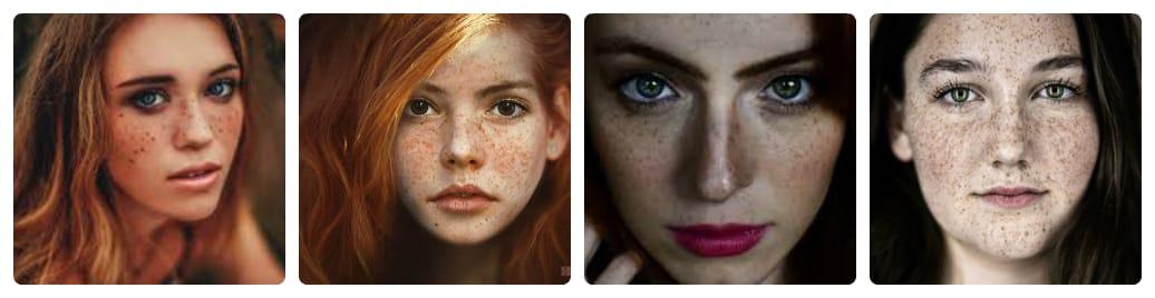 nguyên nhân dẫn đến nám da mặt