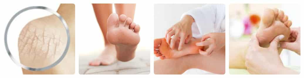 nguyên nhân dẫn đến nứt gót chân là gì