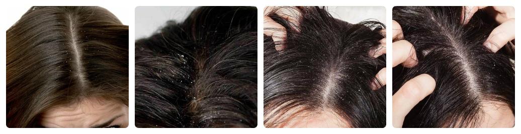 Tại sao cần phải trị điều trị bệnh nấm da đầu?