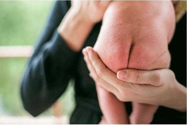 top 5+ kem chống hăm cho trẻ sơ sinh tốt nhất 2021: (an toàn)