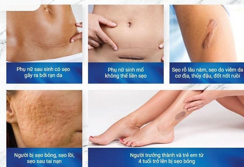 Gel trị sẹo Dottorprimo Scargel Plus giúp đánh bay mọi vết sẹo từ mới đến cũ