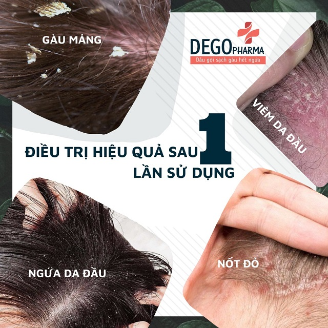 Dầu gội Dego điều trị hiệu quả ngay sau 1 lần sử dụng