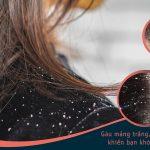Nấm da đầu là bệnh lý thường gặp ở nhiều người